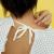 Eczema-cauze si tratament